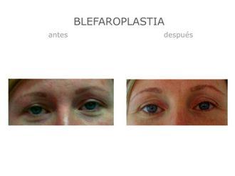 Blefaroplastia-640093