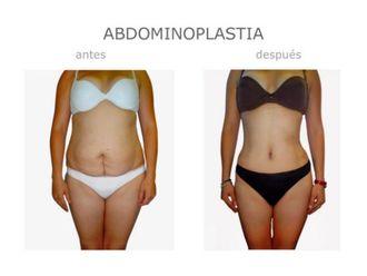Abdominoplastia - 640104