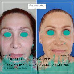 Lipoinyección facial- Dr. Jhon