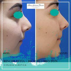Rinoplastia, mentón y bichat - Dr-Jhon