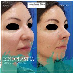Rinoplastia Dr Jhon