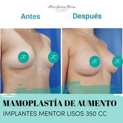 Implantes lisos 350 CC