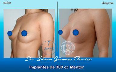 implantes 300 cc