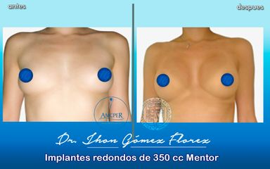implantes redondos-350 cc