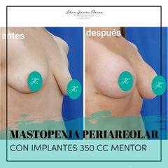 Implantes 350 CC Dr. Jhon