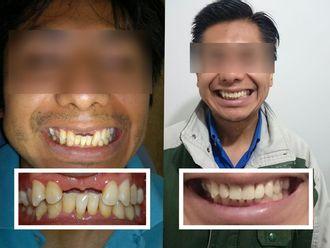 Implantes Dentales - 604277