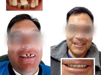 Implantes Dentales - 604281