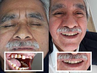 Implantes Dentales-605635