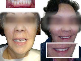 Ortodoncia - 605636