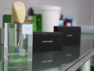 Implantes Dentales - 638942
