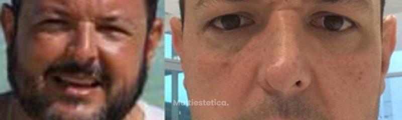Antes y despues de cirugia bariatrica