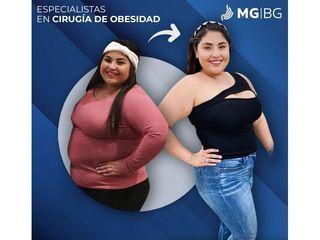 Manga gástrica - MGBG Monterrey Gastro Bariatric Group