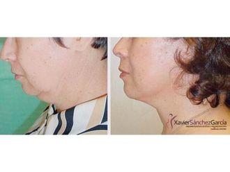 Cirugía de papada-635846
