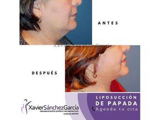 Cirugía de papada-641494