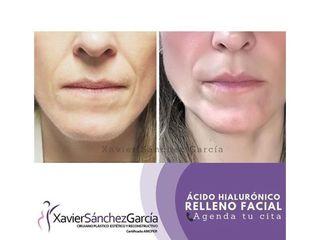 ácido hialurónico relleno facial