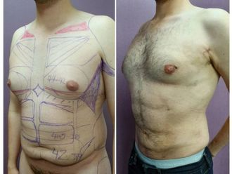 Abdominoplastia-642636