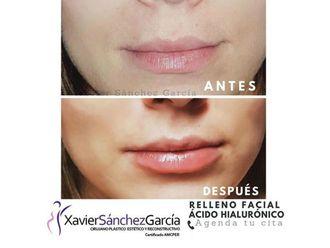 Aumento de labios - 642857