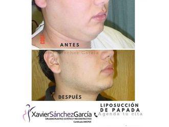 Cirugía de papada - 642858