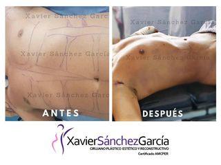 liposucción high definition