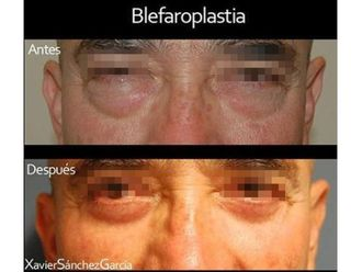 Blefaroplastia - 643335