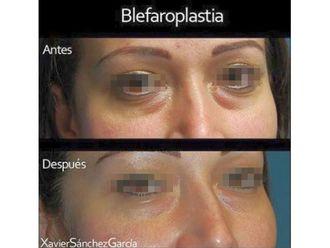 Blefaroplastia - 643336