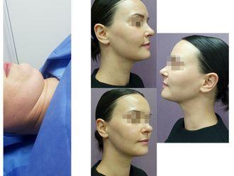Cirugía de papada-643338