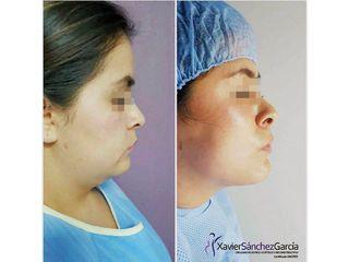 Cirugía de papada