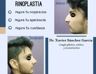 Dr. Xavier Antonio Sánchez García - Rinoplastia