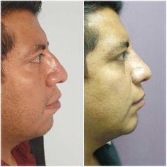 Rinoplastia + mentoplastia - Dr. Xavier Antonio Sánchez García