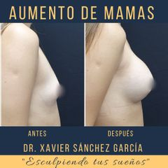 Aumento de busto - Dr. Xavier Sánchez García