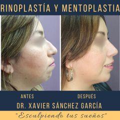 Rinoplastia y mentoplastia - Dr. Xavier Sánchez García