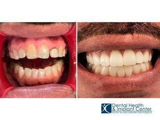 Ortodoncia - 628151