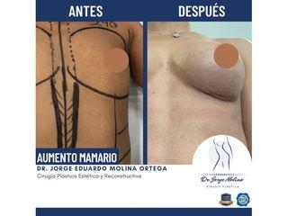 Aumento de busto - Dr. Jorge Molina