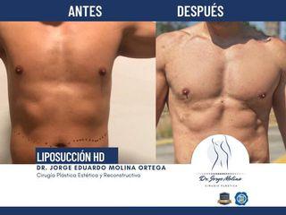 Liposucción HD - Dr. Jorge Molina