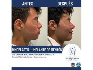 Rinoplastia + Implante de mentón - Dr. Jorge Molina