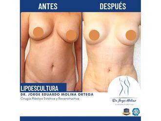 Lipoescultura-736816