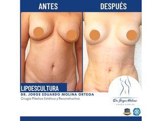 Lipoescultura - Dr. Jorge Molina