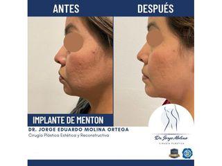 Implante de mentón - Dr. Jorge Molina