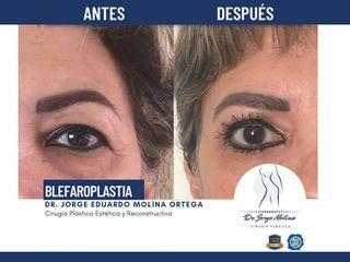 Blefaroplastia - Dr. Jorge Molina