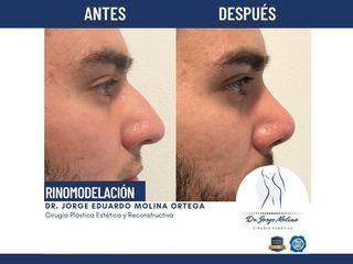 Rinomodelación - Dr. Jorge Molina