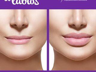 Antes y despues de inyeccion de labios