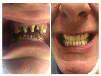 Implantes Dentales - 641726