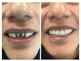 Implantes Dentales-641727