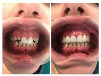 Implantes Dentales - 641729
