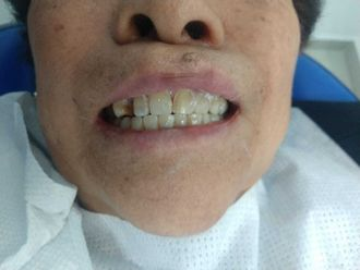 Estética dental-689795