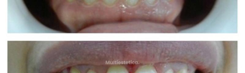Estética Dental Dra. Eunice Martínez