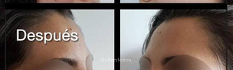 Antes y despues de rinomodelacion con hilos tensores