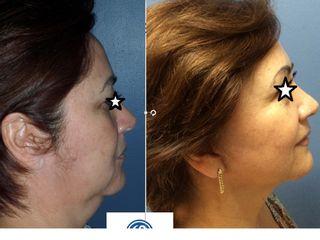 Lifting cuello y facial