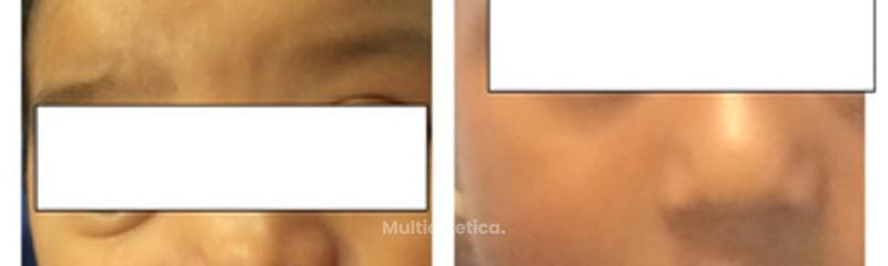 Correccion de labio y paladar hendido