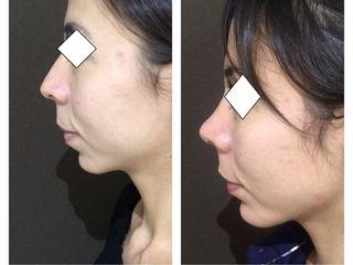 Armonizacion facial, rinoplastia, mentón y mejillas